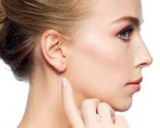 otoplastie-chirurgie-oreilles-decollees-2